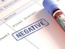 Forze Armate:obbligatorio per i controlli annuali anche test HIV?