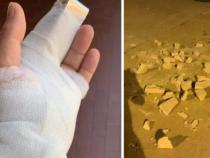Cronaca: Torino, lo sfogo del poliziotto ferito